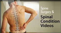 Spine Surgery & Spinal Condition Videos - Kraus Back & Neck Institute